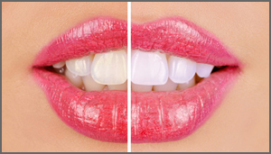 Teeth Whitening in Richardson Texas
